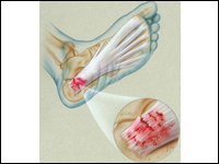 They say your problem that carries this. Plantar fascia a small